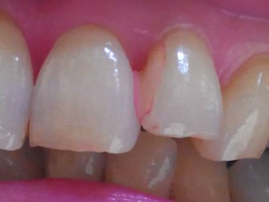 歯みがき後